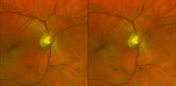 Photo of glaucoma