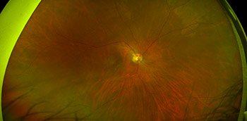 Photo of macular degeneration