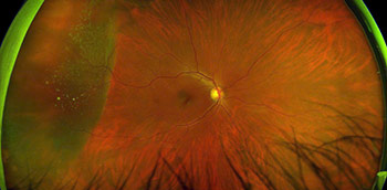 Photo of an ocular emergency: Retinal Detachment with horshoe tear